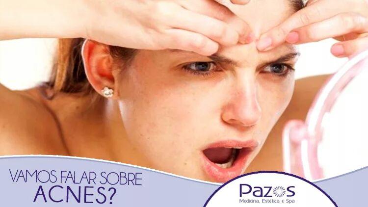 Vamos falar sobre acne?