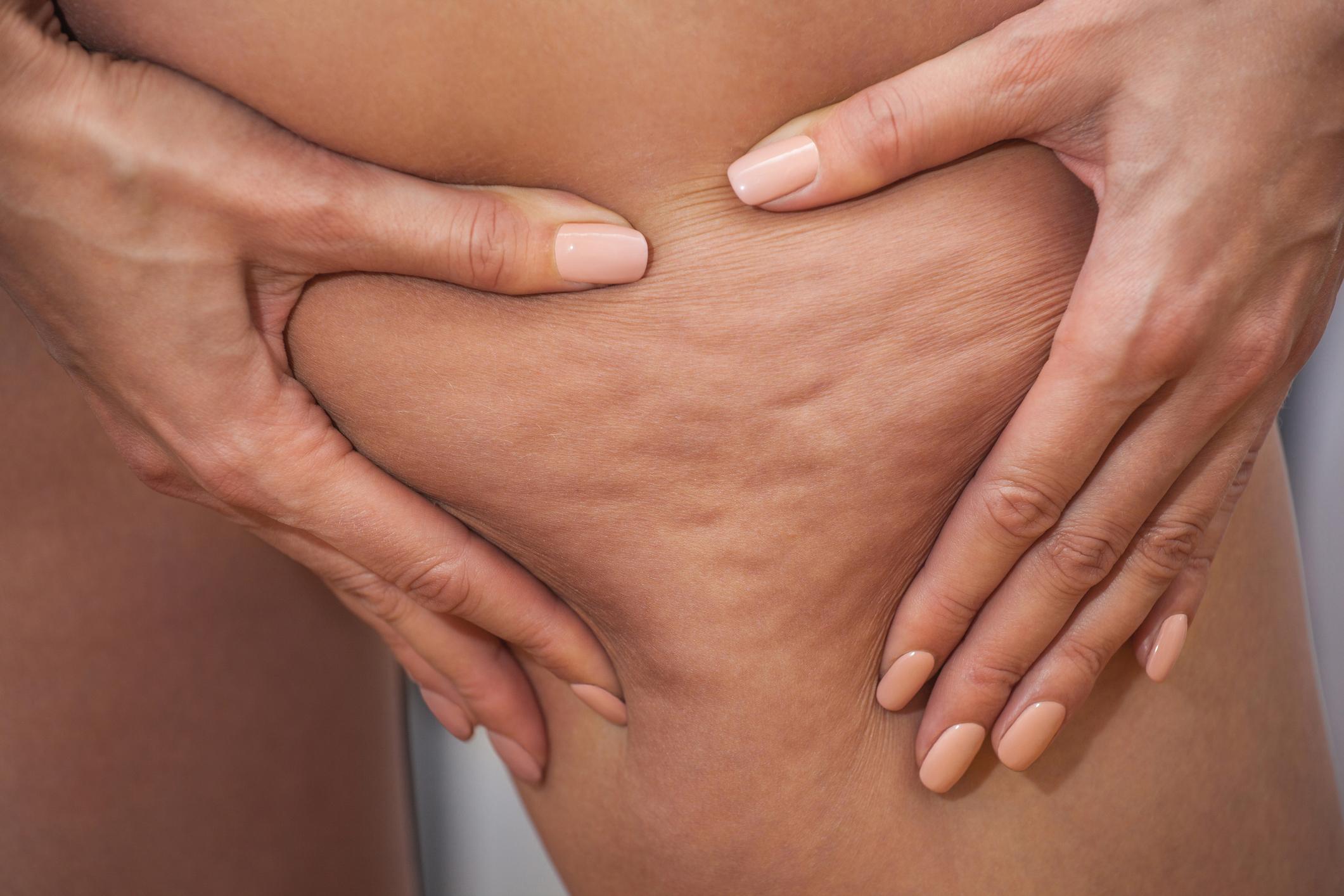 Celulite: 3 tratamentos bombásticos para acabar com elas