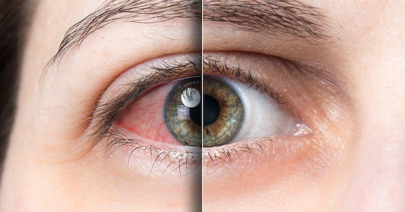 Pazos Ligth Eye